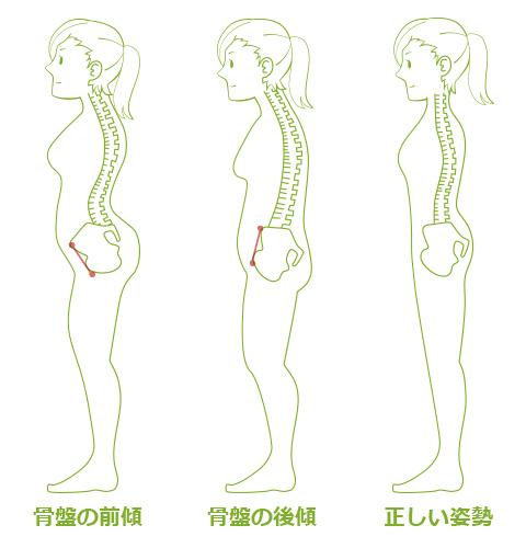 悪い姿勢の代表「猫背」には2つのタイプがある