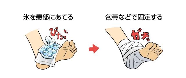 出来上がった氷を患部に当て、弾性包帯などで患部に巻きつけ固定