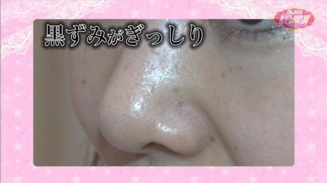 鼻の毛穴に角栓がぎっしり詰まって黒ずんでいる