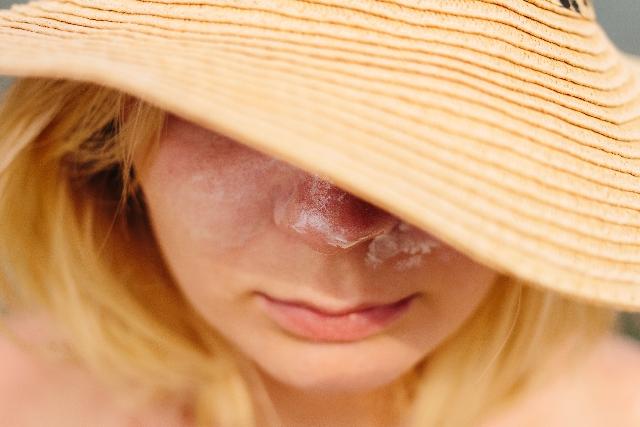 日焼け止めでのトラブルに悩んでいる人の画像